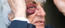 Ecclestone Turns Face Bruises into Good Advertising